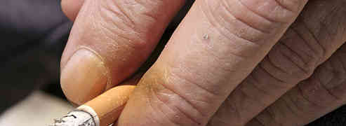Impact of Cigarette Against Your Skin
